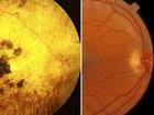 Oko slepých lidé (vlevo) a zdravých (vpravo)