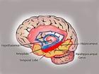 Pro názornost uvádíme tuto ilustraci, kde vroubkovaný ohyb je zvýrazněn červenou barvou