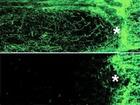 Poškozené axony zrakového nervu u normální myši (dole) a regenerované u myši po genové terapii