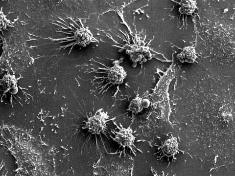 Pomohou rakovinové buňky odhalit tajemství nesmrtelnosti?