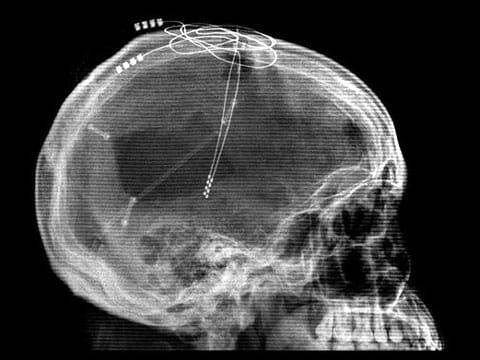 Rentgenový snímek stimulace talamu implantovanými elektrodami